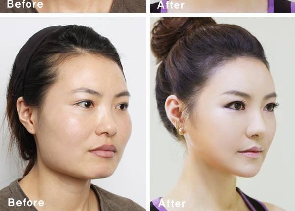 เผยภาพ 20 ภาพสาวเกาหลี ก่อน-หลัง ทำศัลยกรรม เหมือนได้ชีวิตใหม่เลย (10)