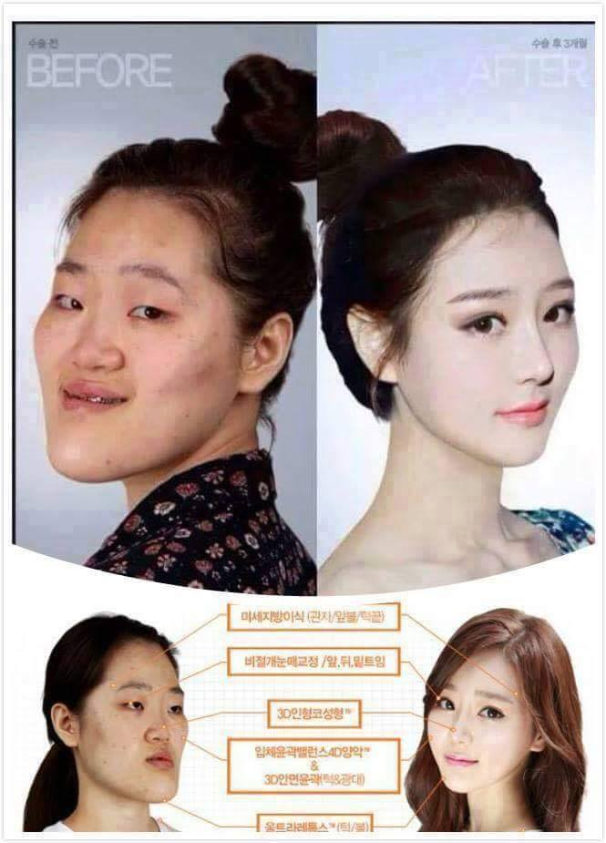 เผยภาพ 20 ภาพสาวเกาหลี ก่อน-หลัง ทำศัลยกรรม เหมือนได้ชีวิตใหม่เลย (1)
