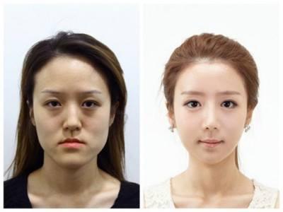 เผยภาพ 20 ภาพสาวเกาหลี ก่อน-หลัง ทำศัลยกรรม เหมือนได้ชีวิตใหม่เลย (12)