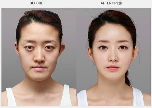 เผยภาพ 20 ภาพสาวเกาหลี ก่อน-หลัง ทำศัลยกรรม เหมือนได้ชีวิตใหม่เลย (13)