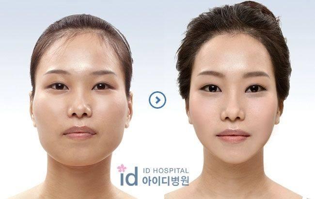 เผยภาพ 20 ภาพสาวเกาหลี ก่อน-หลัง ทำศัลยกรรม เหมือนได้ชีวิตใหม่เลย (14)