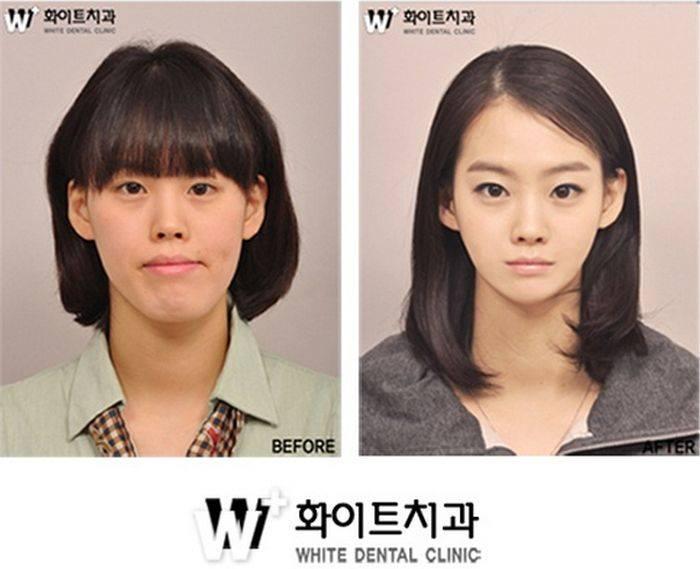 เผยภาพ 20 ภาพสาวเกาหลี ก่อน-หลัง ทำศัลยกรรม เหมือนได้ชีวิตใหม่เลย (15)