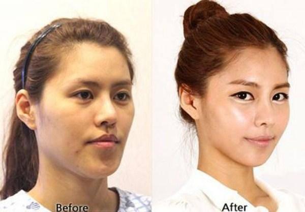 เผยภาพ 20 ภาพสาวเกาหลี ก่อน-หลัง ทำศัลยกรรม เหมือนได้ชีวิตใหม่เลย (16)