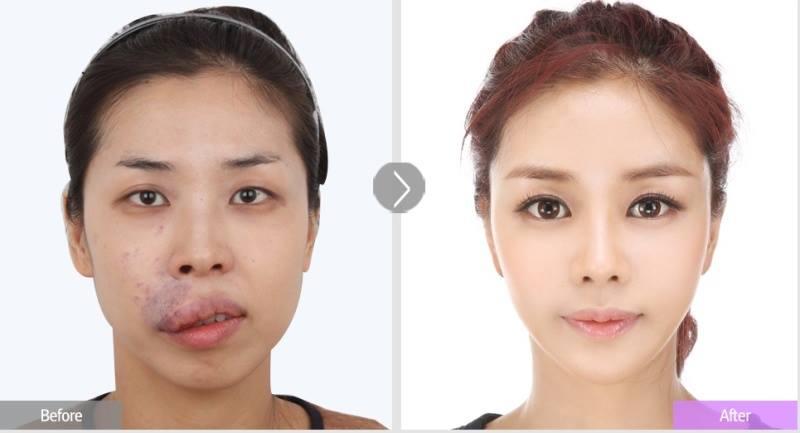 เผยภาพ 20 ภาพสาวเกาหลี ก่อน-หลัง ทำศัลยกรรม เหมือนได้ชีวิตใหม่เลย (17)