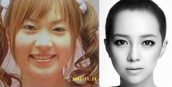 เผยภาพ 20 ภาพสาวเกาหลี ก่อน-หลัง ทำศัลยกรรม เหมือนได้ชีวิตใหม่เลย (18)