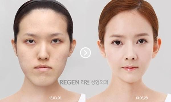 เผยภาพ 20 ภาพสาวเกาหลี ก่อน-หลัง ทำศัลยกรรม เหมือนได้ชีวิตใหม่เลย (19)