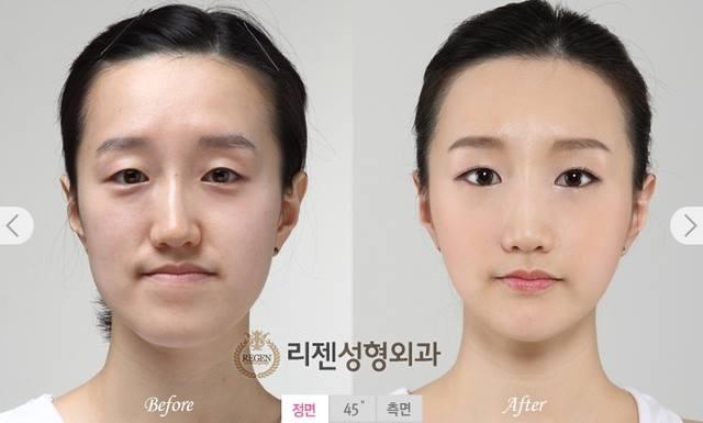 เผยภาพ 20 ภาพสาวเกาหลี ก่อน-หลัง ทำศัลยกรรม เหมือนได้ชีวิตใหม่เลย (20)