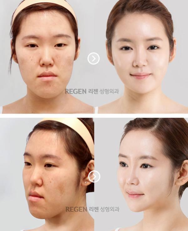 เผยภาพ 20 ภาพสาวเกาหลี ก่อน-หลัง ทำศัลยกรรม เหมือนได้ชีวิตใหม่เลย (21)