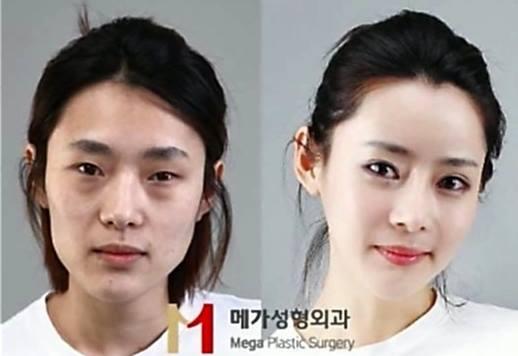 เผยภาพ 20 ภาพสาวเกาหลี ก่อน-หลัง ทำศัลยกรรม เหมือนได้ชีวิตใหม่เลย (22)