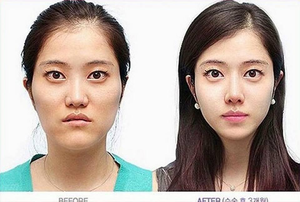เผยภาพ 20 ภาพสาวเกาหลี ก่อน-หลัง ทำศัลยกรรม เหมือนได้ชีวิตใหม่เลย (23)
