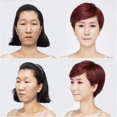 เผยภาพ 20 ภาพสาวเกาหลี ก่อน-หลัง ทำศัลยกรรม เหมือนได้ชีวิตใหม่เลย (24)