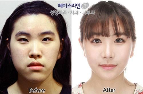 เผยภาพ 20 ภาพสาวเกาหลี ก่อน-หลัง ทำศัลยกรรม เหมือนได้ชีวิตใหม่เลย (25)
