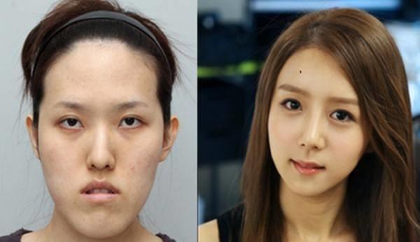 เผยภาพ 20 ภาพสาวเกาหลี ก่อน-หลัง ทำศัลยกรรม เหมือนได้ชีวิตใหม่เลย (2)
