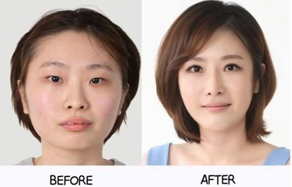 เผยภาพ 20 ภาพสาวเกาหลี ก่อน-หลัง ทำศัลยกรรม เหมือนได้ชีวิตใหม่เลย (3)