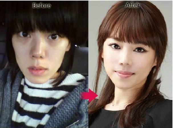 เผยภาพ 20 ภาพสาวเกาหลี ก่อน-หลัง ทำศัลยกรรม เหมือนได้ชีวิตใหม่เลย (4)