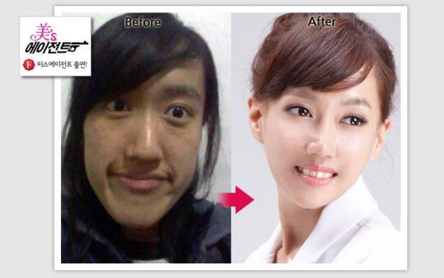 เผยภาพ 20 ภาพสาวเกาหลี ก่อน-หลัง ทำศัลยกรรม เหมือนได้ชีวิตใหม่เลย (5)