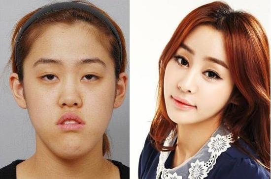 เผยภาพ 20 ภาพสาวเกาหลี ก่อน-หลัง ทำศัลยกรรม เหมือนได้ชีวิตใหม่เลย (6)