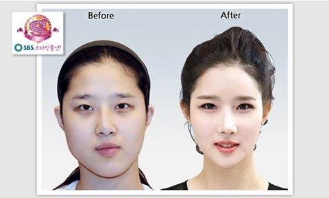 เผยภาพ 20 ภาพสาวเกาหลี ก่อน-หลัง ทำศัลยกรรม เหมือนได้ชีวิตใหม่เลย (7)
