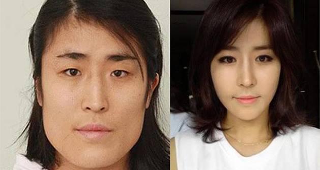 เผยภาพ 20 ภาพสาวเกาหลี ก่อน-หลัง ทำศัลยกรรม เหมือนได้ชีวิตใหม่เลย (8)