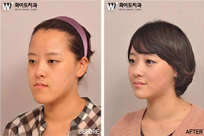 เผยภาพ 20 ภาพสาวเกาหลี ก่อน-หลัง ทำศัลยกรรม เหมือนได้ชีวิตใหม่เลย (9)