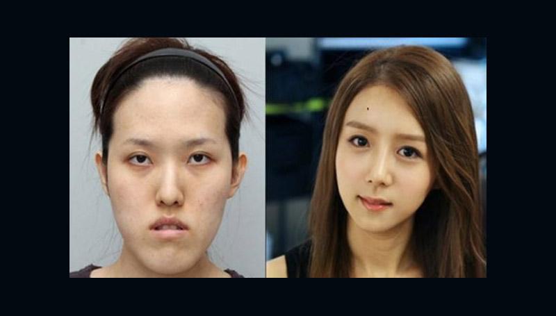 ศัลยกรรม สาวเกาหลี เกาหลีใต้