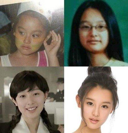 คิมจีวอน ตอนเด็ก