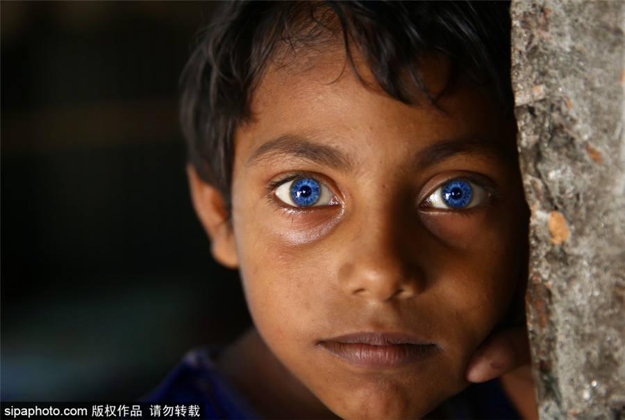 OMG! เด็กชายบังคลาเทศ ผู้มีดวงตาเป็นสีฟ้าเหมือนไพลิน สวยมากๆ (1)