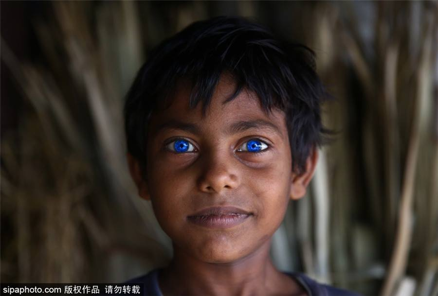OMG! เด็กชายบังคลาเทศ ผู้มีดวงตาเป็นสีฟ้าเหมือนไพลิน สวยมากๆ (3)