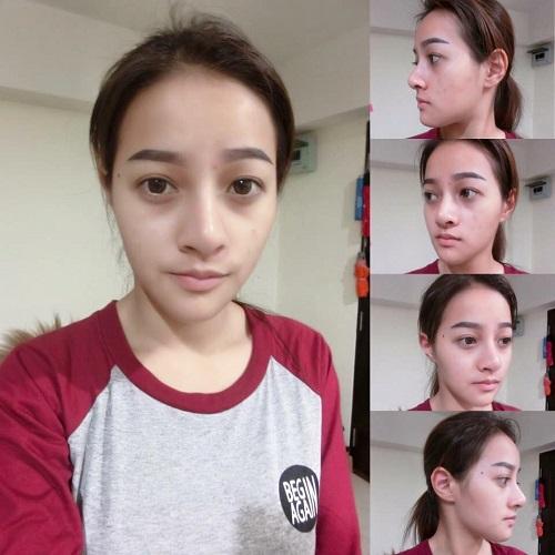 chin-surgery06