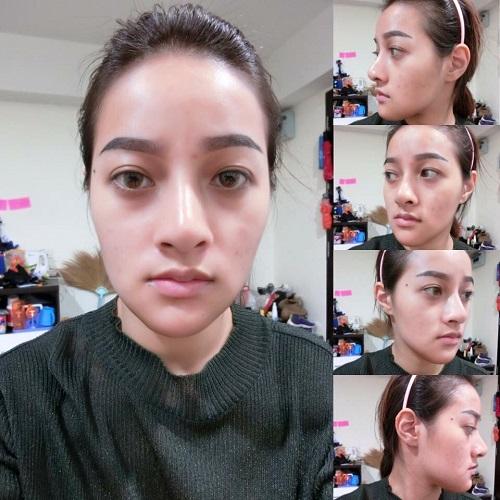 chin-surgery07