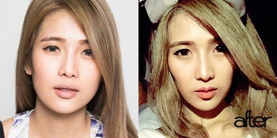 lip-surgery01
